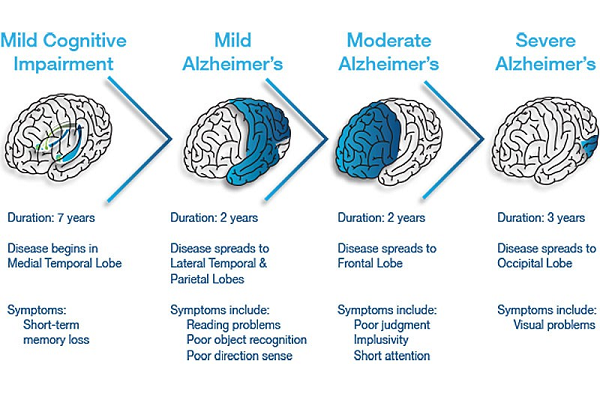 Three Stages of Alzheimers Disease