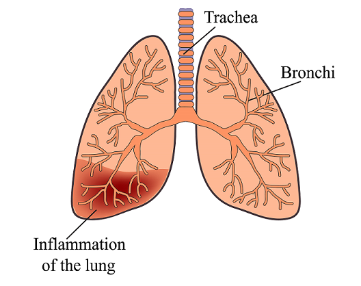 what is a pneumonia and how does it affect seniors seniordirectory com